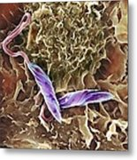 Macrophage Attacking A Foreign Body, Sem Metal Print