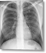 Tuberculosis, X-ray Metal Print