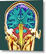 Healthy Brain, Mri Scan Metal Print