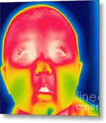 A Thermogram Of A 5 Month Old Baby Metal Print