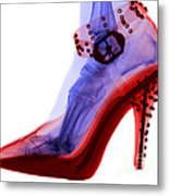 An X-ray Of A Foot In A High Heel Shoe Metal Print