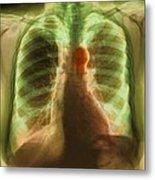 Aortic Aneurysm, X-ray Metal Print