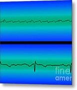 Atrial Flutter & Normal Heart Beat Metal Print