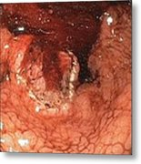 Bleeding Stomach Ulcer With Cancer Metal Print