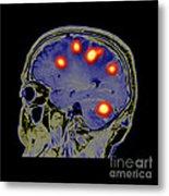 Brain Tumors Metal Print