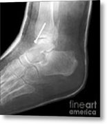 Broken Ankle Metal Print