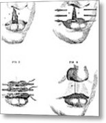 Cleft Lip Surgery, 1791 Metal Print