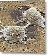 Dividing Cancer Cell, Sem Metal Print by Steve Gschmeissner