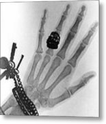 Early X-ray Photograph Of A Hand Taken In 1896 Metal Print