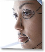 Facelift Surgery Markings Metal Print