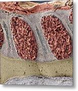 Foetal Spinal Column Metal Print