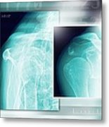 Fractured Shoulder, X-rays Metal Print