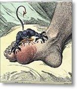 Gout, 18th-century Caricature Metal Print
