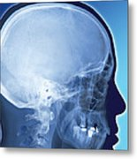 Healthy Skull, Coloured X-ray Metal Print