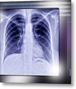 Heart And Lungs, X-ray Metal Print