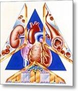High Blood Pressure, Artwork Metal Print