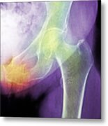 Hip Fracture Due To Osteoporosis Metal Print