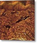 Human Skin, Light Micrograph Metal Print by Robert Markus