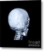 Human Skull Metal Print