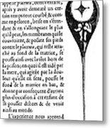 Human Sperm - 17th Century Metal Print