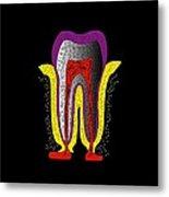 Human Tooth Anatomy, Artwork Metal Print