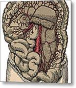 Inferior Mesenteric Artery And The Aorta Metal Print