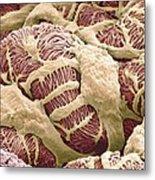 Kidney Glomerulus, Sem Metal Print