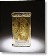 Kidney, Stab Wound, 1937 Metal Print