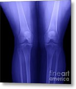 Knees Metal Print