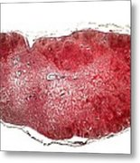 Lymph Gland, Light Micrograph Metal Print
