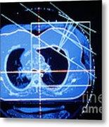 Mammogram Metal Print