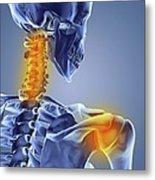 Neck And Shoulder Pain,computer Artwork Metal Print