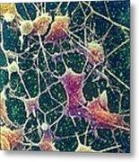 Nerve Cells, Sem Metal Print