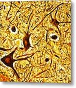 Nerve Tissue Metal Print