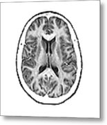Normal Cross Sectional Mri Of The Brain Metal Print