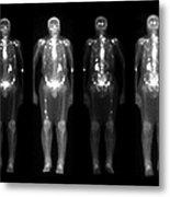 Nuclear Medicine Bone Scan Metal Print