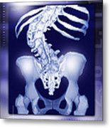 Osteoporosis Of The Spine, Ct Scan Metal Print