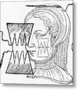 Par� Suture, 1500s Metal Print
