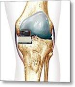 Partial Knee Replacement, Artwork Metal Print
