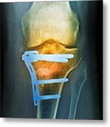 Pinned Broken Knee, X-ray Metal Print by