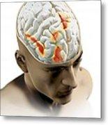 Placebo Effect In The Brain, Artwork Metal Print