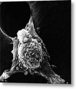 Pseudopodia Sem Metal Print by Science Source