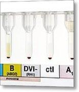 Rhesus Test On Blood: Negative Result Metal Print