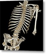 Skeletal Reconstruction Metal Print
