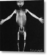 Skeleton Of A Baby Metal Print