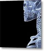 Skeleton, X-ray Artwork Metal Print