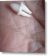 Smooth Tooth Wrinkled Hand Metal Print