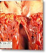 Subacute Bacterial Endocarditis Metal Print