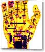Toy Robotic Hand X-ray Metal Print
