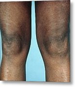 View Of Knees Affected By Osteoarthritis Metal Print